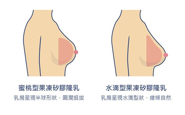 果凍矽膠隆乳